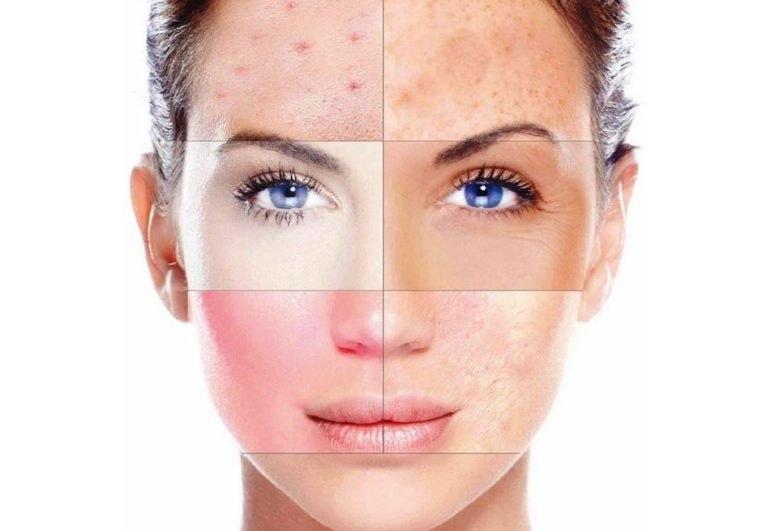 Кожных заболеваний НЕТ — КАКИЕ БОЛЕЗНИ проявляются на коже. Кожа — это один из самых загадочных ...