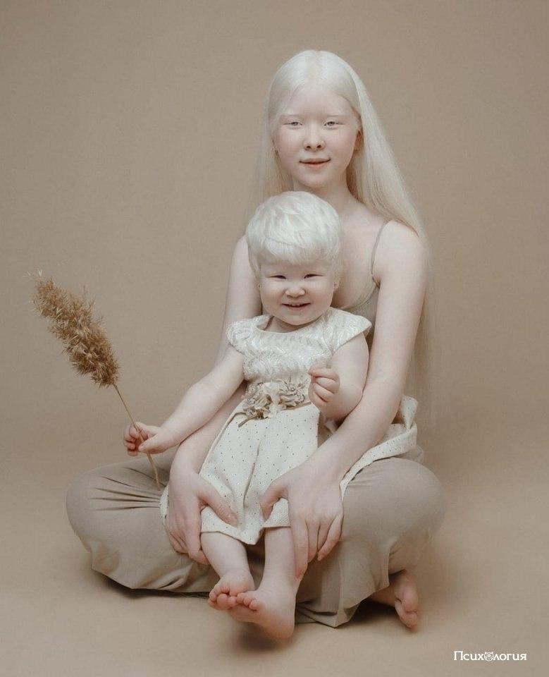 как видят люди альбиносы фото сейчас рад, что